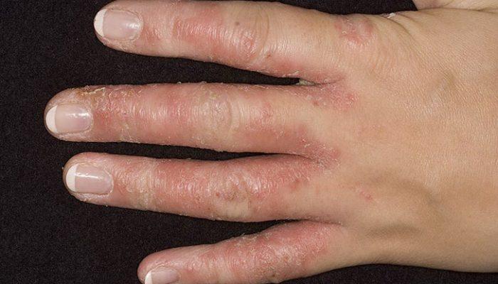Почему облазит кожа на ладонях? Причины и соответствующие способы лечения