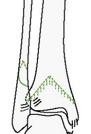 Чрезсиндесмозный изолированный перелом малоберцовой кости
