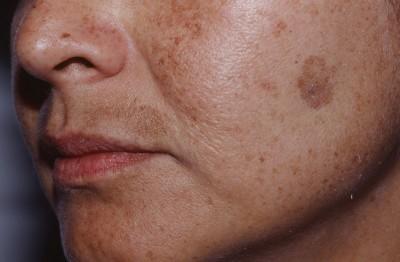 Заболевания надпочечников – симптомы и лечение фото