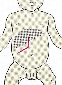 Расширение трансректального и срединного разрезов