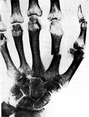 Очаговый (пятнистый) остеопороз (синдром Зудека)