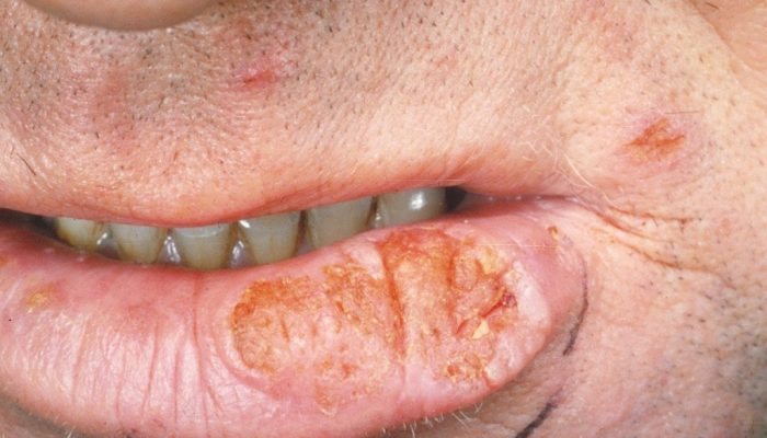 Виды, симптомы и лечение плоскоклеточного рака кожи