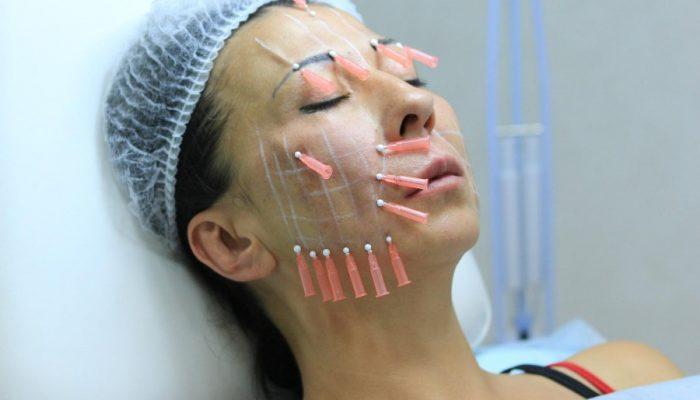 Как проводится подтяжка лица без операции и хирургическим методом? Плюсы и минусы каждого способа