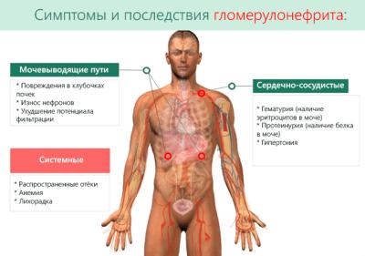 Симптоматика гломерулонефрита