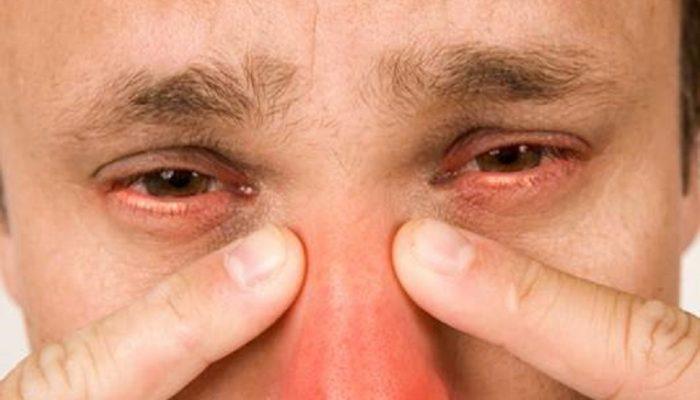 Воспаление в носу: лечение