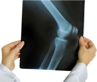 Артрозо артрит коленного сустава: диагностика