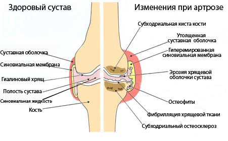 Степени артрозо артрита коленного сустава