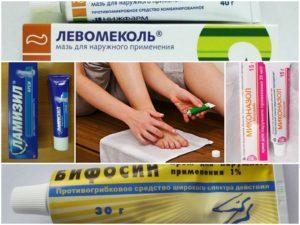 Как правильно выбрать крем от грибка на ногах