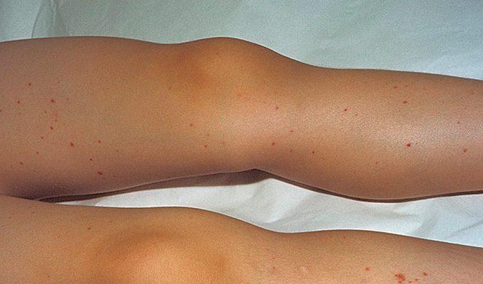 Болезнь Шенлейна-Геноха: симптомы и лечение