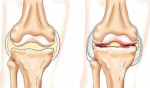 Ревматоидный артрит у детей: классификация