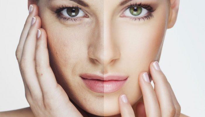 Что такое комбинированная чистка лица?