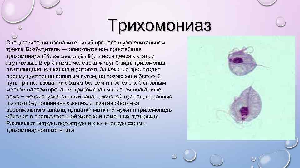 трихомонадный кольпит симптомы и лечение