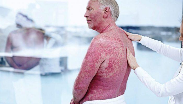 Возвращаем красоту коже: лечение псориаза в Израиле