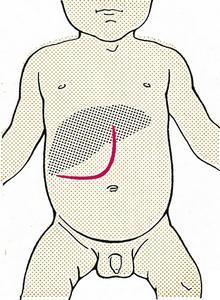 Разрез Рио-Бранко при операции на печени