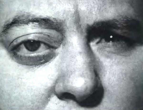 Фото больного краниоорбитальной менингиомой: экзофтальм свыше 8 мм