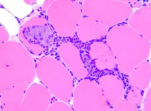 Гистологический препарат мышцы пациента, страдающего дерматомиозитом (полимиозитом)