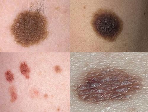 Виды невусов кожи