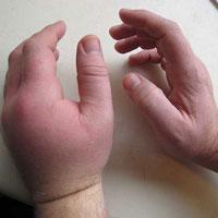 Острый гнойный воспалительный процесс руки