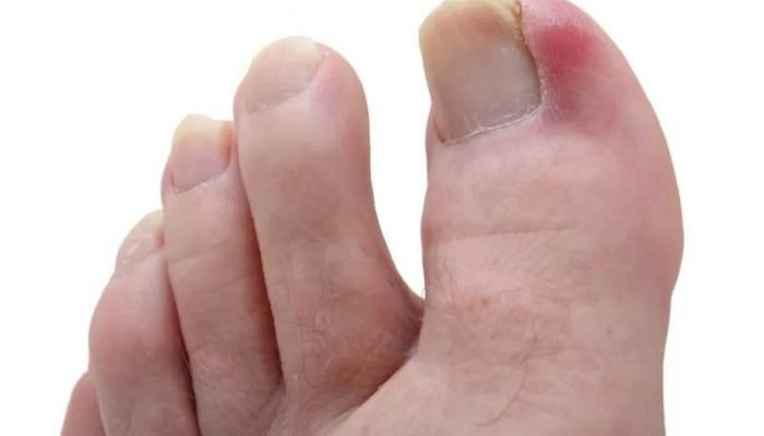 Лучшие способы лечения панариция пальца на руке или ноге