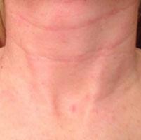 Причины сыпи и зуда кожных покровов в области шеи