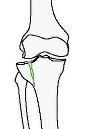 Неполный внутрисуставной перелом большеберцовой или малоберцовой костей отколом мыщелка