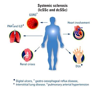 Клиника системной склеродермии