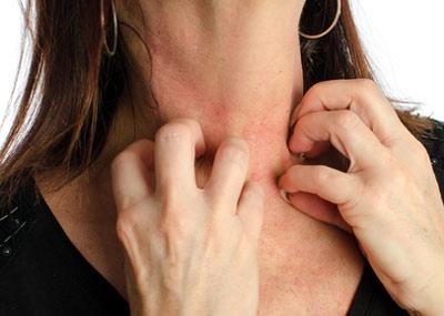 Появление высыпаний на шее врезультате аллергической реакции