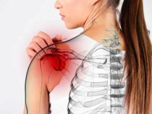 Плечелопаточный периартрит: лечение