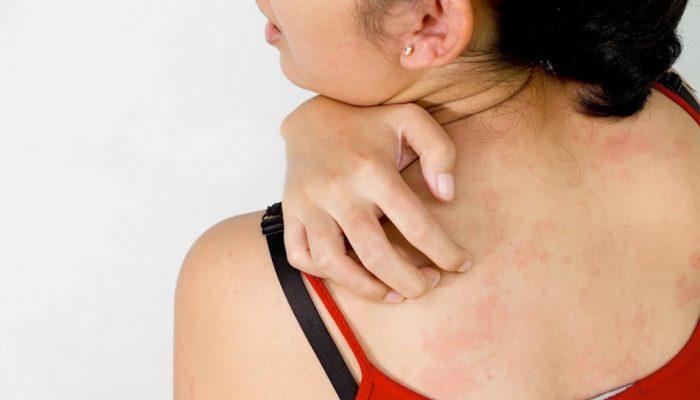 Почему возникает и как проявляется аллергия на хлорку? Разбираемся, как лечить реакцию