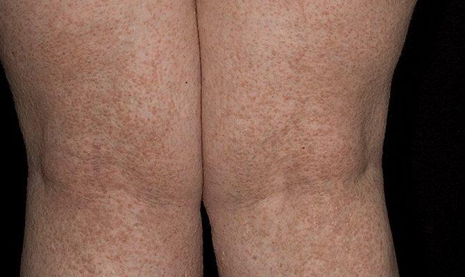 Как лечить фолликулярный кератоз?