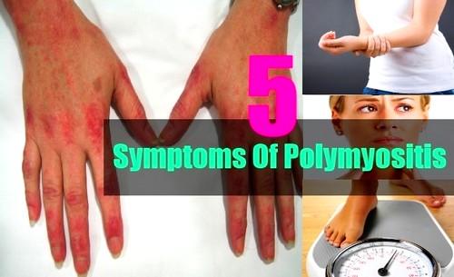 5 симптомов дерматомиозита (полимиозита)