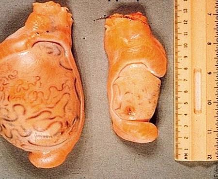 Гипоплазия яичек
