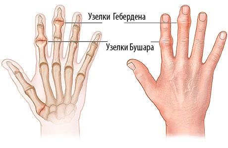Почему на пальцах появляются небольшие шишки или наросты