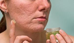 эффективные рецепты против шрамов от прыщей в домашних условиях