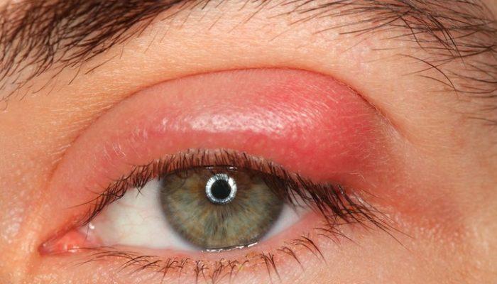 Шарик под кожей около глаза