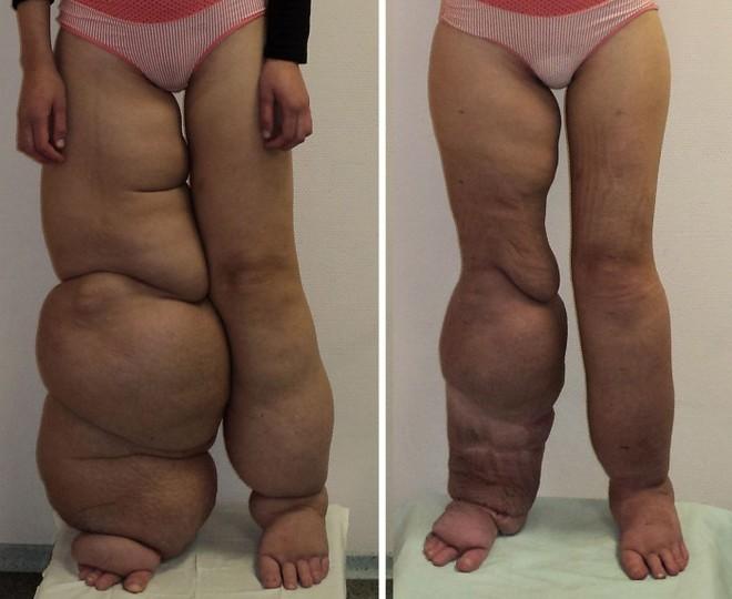Причины слоновой болезни ног