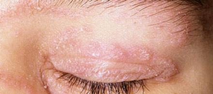 Что же делать, если кожа под глазами покраснела и стала шелушиться?