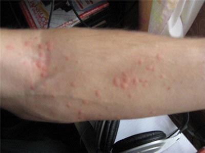 Причины появления сыпи на руках в виде красных прыщиков