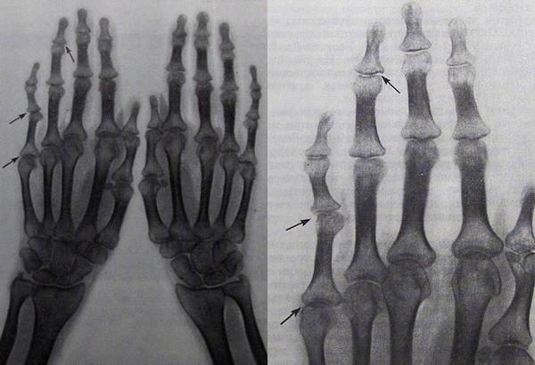Рентгенограмма кистей - подвывихи и узурация