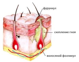 образование фурункулов в интимной зоне