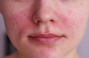 Как убрать раздражение и покараснение на лице