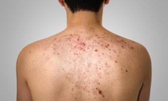 причины появления прыщей на спине у мужчин