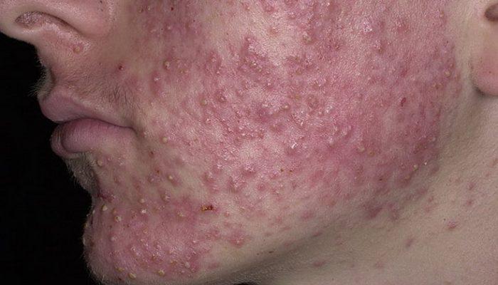 Заразны ли себорея и себорейный дерматит?