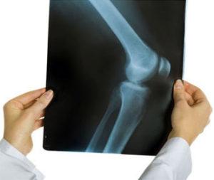 Диагностика остеоартрита коленного сустава