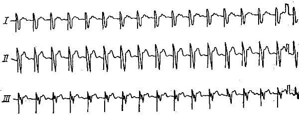 Электрокардиограмма, записанная при стимуляции сердца импульсами с постоянной частотой