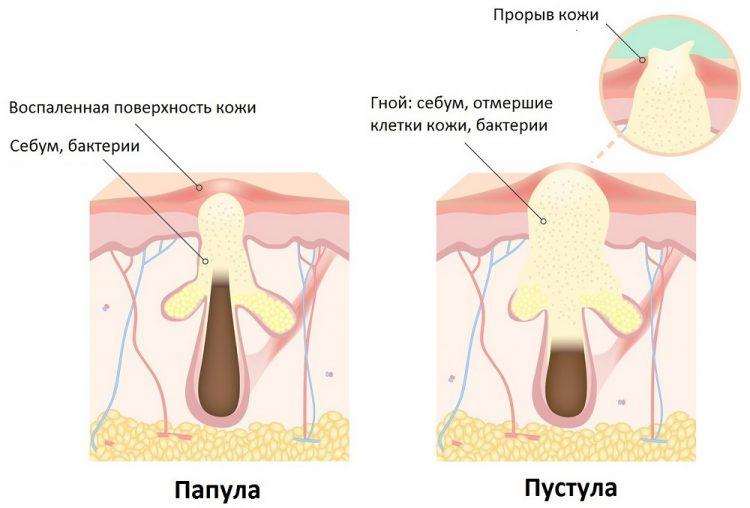 Что такое пустулы? Лечение