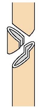 Клиновидный перелом