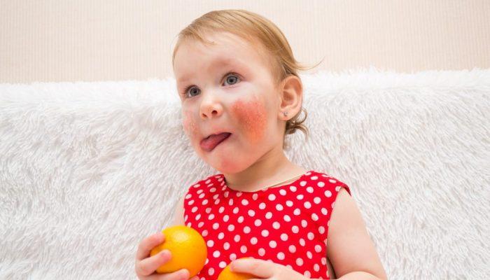 Как проявляется и лечится аллергия на мандарины? Отвечаем на популярные вопросы