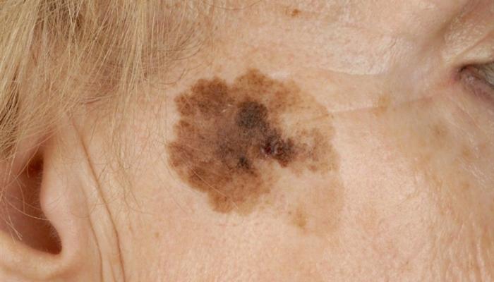 Виды меланомы: акральная, лентиго, увеальная, нодулярная