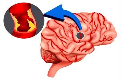 Атеросклеротическая дисциркуляторная энцефалопатия